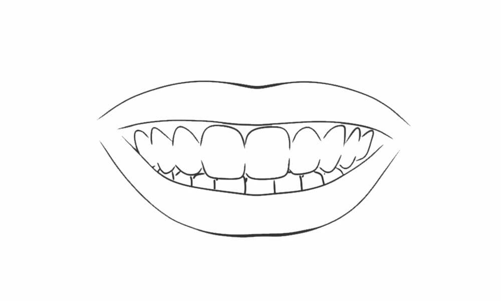 tandblekningspenna steg 4