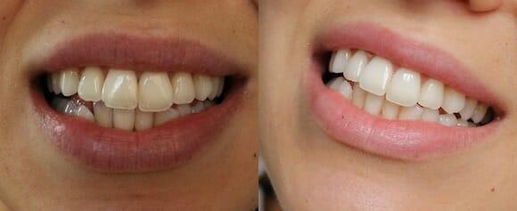 leende-före-efter swissclinic