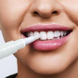 tandblekningspenna-applicering