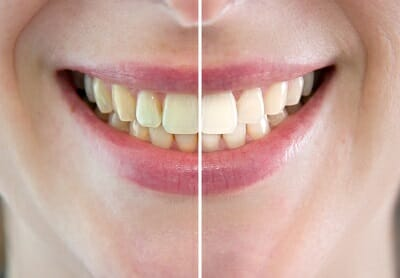 tandblekning-fore-efter-bild